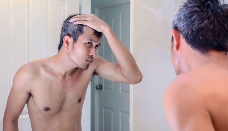 tóc bạc sớm ở nam